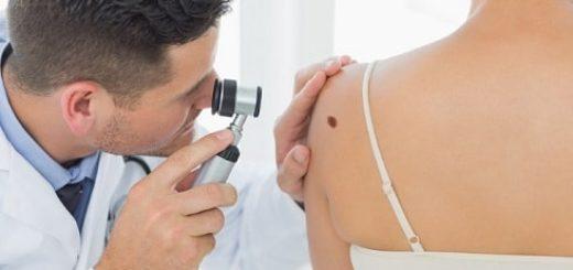 Лечение новообразований на коже правильным способом