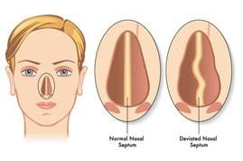 Устранение искривления носовой перегородки